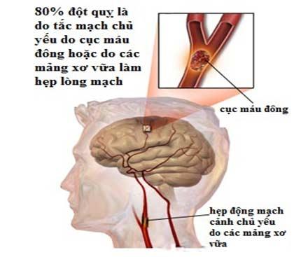 Bệnh tai biến mạch máu não nhẹ là gì?