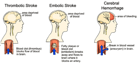 types-of-strokes1